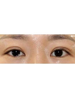 韓國初雪整形外科涮雙眼皮修復案例對比_術后