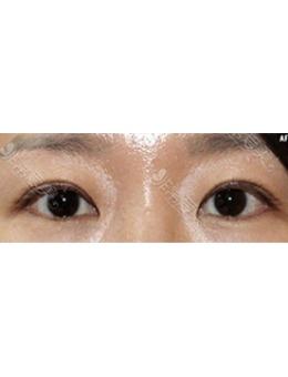 韓國初雪整形外科涮雙眼皮修復案例對比_術前