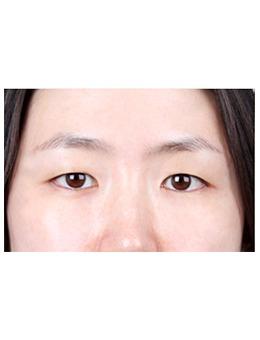 韓國k整形外科眼綜合案例對比_術后