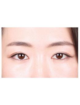 韓國k整形外科眼綜合案例對比_術前