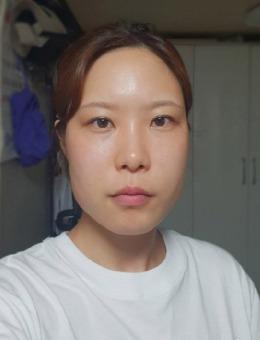 TL整形外科輪廓三件套+鼻綜合+眼部修復對比案例