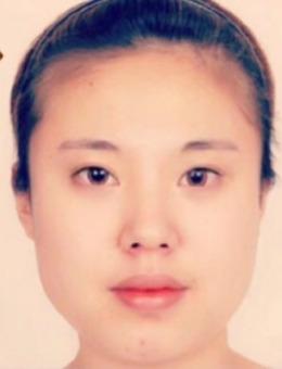 -韩国菲斯莱茵医院Vline+眼综合手术案例