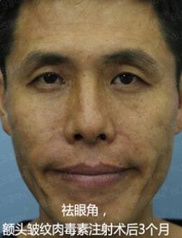 韩国BLS整形外科面部祛皱纹手术案例