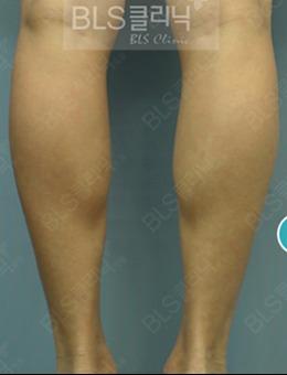 韩国BLS整形医院瘦小腿手术案例