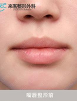 韓國來客整形外科微笑唇注射案例對比_術后