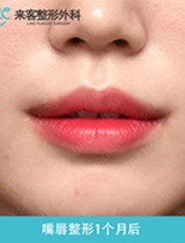 韓國來客整形外科微笑唇注射案例對比_術前
