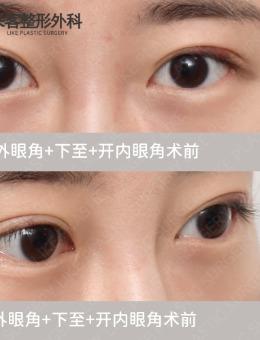 韓國like整形外科開外眼角效果案例
