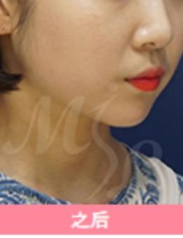 韓國modelline面部吸脂案例對比