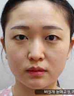 韩国艾恩整形外科眼鼻矫正前后对比案例图