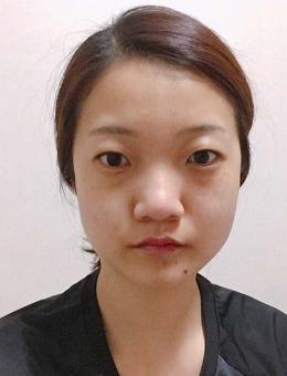 韩国艾恩医院眼鼻矫正案例对比图