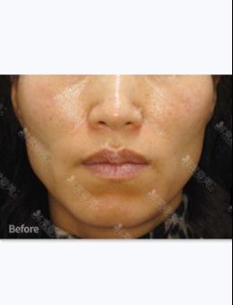 韩国DOCTORS皮肤科好吗?脸部棱角、面部凹陷怎么改善案例解析!