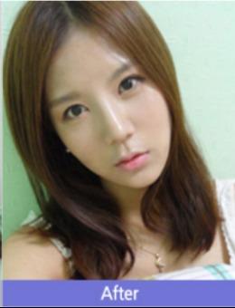 韩国美Plus整形外科真人假体隆鼻恢复过程案例