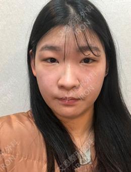 邻家妹在韩国艾恩医院1~35天双眼皮隆鼻日记