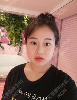 在韩国艾恩做双眼皮隆鼻,改变了我小眼睛、塌鼻梁的村姑的气质