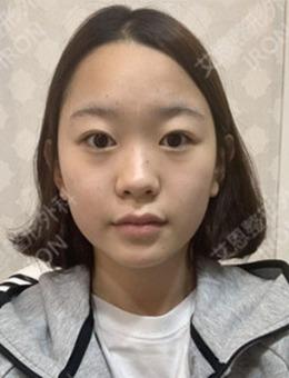 韩国艾恩医院鼻综合+面部脂肪填充7~15日恢复变化