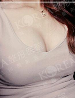 韩国KOREA-韩国korea整形医院假体隆胸对比案例