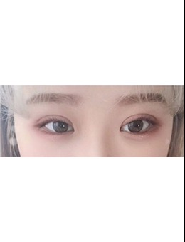 韩国1mm整形外科眼综合手术案例