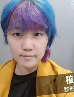 韩国拉本整形医院男性鼻整形手术分享
