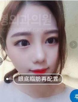 韩国拉本整形外科眼底脂肪重置手术案例_术后