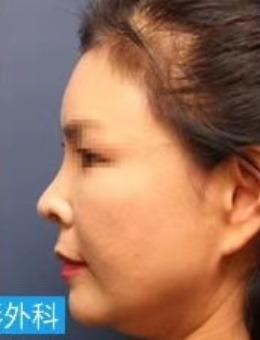 韩国拉本整形外科朝天鼻矫正案例_术后