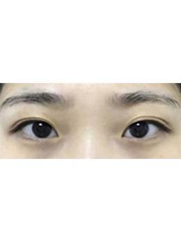 韩国GRIDA整形外科自然粘连法双眼皮案例,去韩国割双眼皮原来可以这么好看!_术前