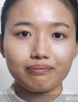 韩国金钟瑞整形外科医院双鄂手术案例分享:双鄂手术前后对比照片反差太大!_术前
