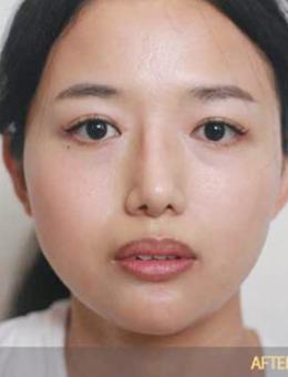 韩国金钟瑞整形外科医院双鄂手术案例分享:双鄂手术前后对比照片反差太大!_术后