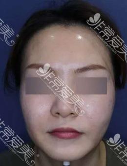 韩国施丽美羕皮肤科林萨郎院长做面部提升怎么样?来看真人案例对比图!_术前