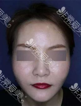 韩国施丽美羕皮肤科林萨郎院长做面部提升怎么样?来看真人案例对比图!_术后