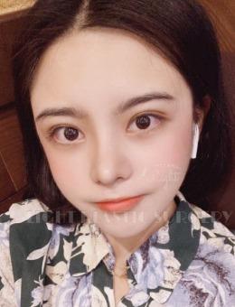 韩国light整形外科眼综合+颧骨内推手术恢复案例