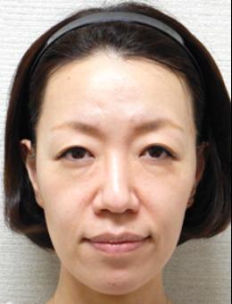 日本水之森美容医院面部年轻态案例_术前