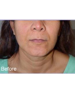 颈纹深怎么消除?泰国PAI比差審美整形医院颈部提拉手术效果明显!_术前