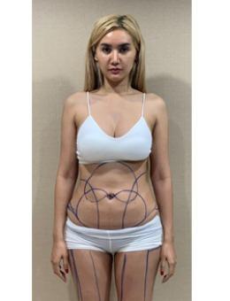 泰国抽脂哪家好?泰国艺术(the art)整形医院吸脂案例展示效果!