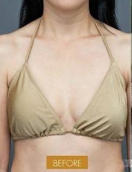 泰国NCC整形外科诊所假体隆胸案例