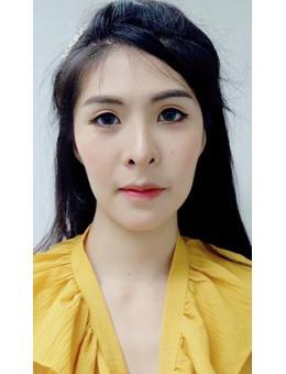 泰国LBC整形外科医院面部填充案例对比照
