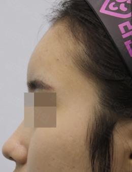 韩国pinkline皮肤医院额头填充案例图