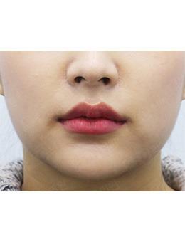 韩国pinkline皮肤医院丰唇对比案例