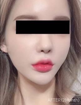 韩国丽迪安整形医院面部吸脂案例