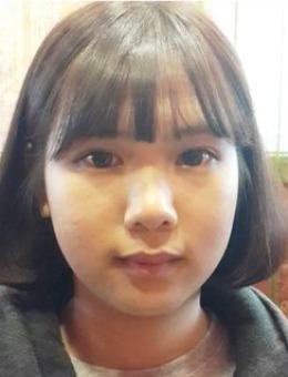韩国iyou皮肤科医院注面部溶脂案例