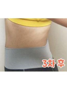 韩国iyou皮肤科医院腰腹注射溶脂针案例