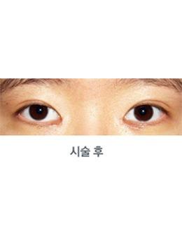 韩国medicos皮肤整形外科双眼皮手术案例