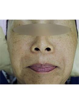 Medicos皮肤整形外科祛斑恢复过程