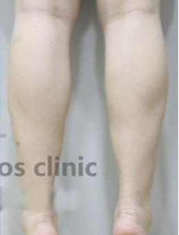 韩国medicos皮肤整形外科小腿整形案例