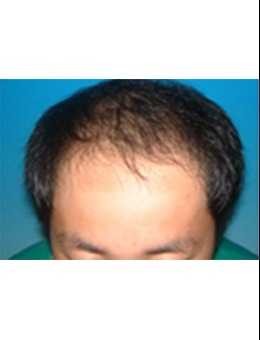 韩国medicos皮肤整形外科毛发移植对比案例