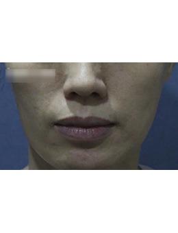 韩国新沙人皮肤科法令纹去除手术案例