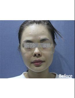 韩国新沙人皮肤科埋线提升手术案例