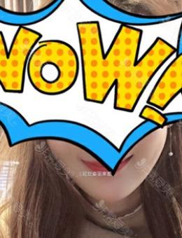 韩国延世姿丽来姻皮肤科埋线提升案例