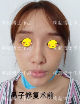 广州广大整形医院隆鼻修复案例