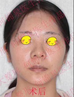 广州广大整形医院双鄂手术术前术后对比案例