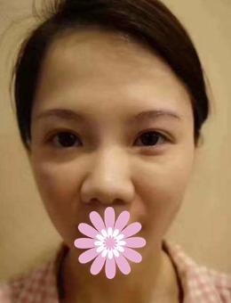 上海欧莱美医疗美容整形医院隆鼻案例